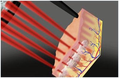 Воздействие пикосекундного лазера