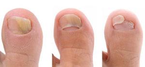 Разные стадии поражения ногтя