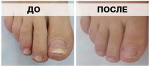 Ногти до и после лечения грибка лазером
