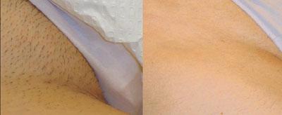 До и после лазерной эпиляции бикини