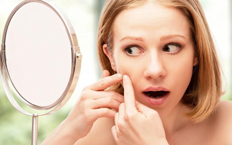 Как лечить постакне на лице
