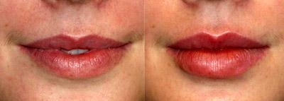 Увеличение губ инъекциями