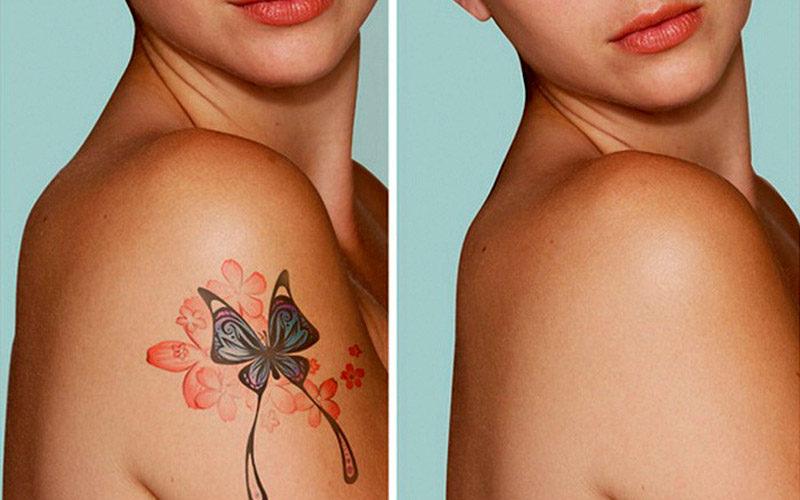 Как удалить татуировку без шрама